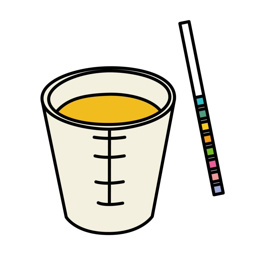 脱水 尿の色